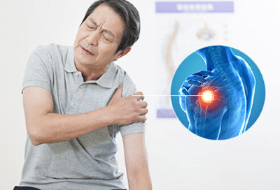 cause-of-shoulder-bursitis