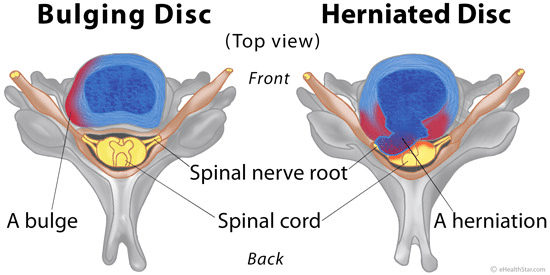 bulging-or-ruptured-discs