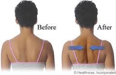 shoulder-squeeze