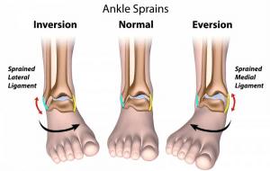ankle-sprain-pain