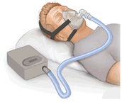 sleep apnea apneah is nothing to ignore it is a serious condition that only a doctor can diagnose the snoring will stop your breathing when you sleep