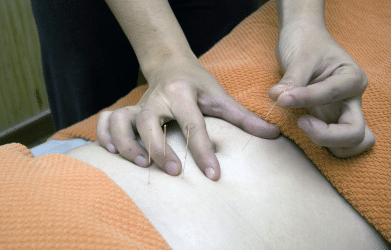 putting needles at the back of the body