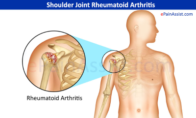 rheumatoid-arthritis-for-shoulder