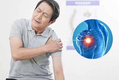 cause-of-shoulder-bursitis
