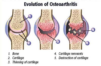 evolution-of-osteoarthritis