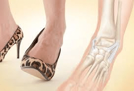 fractures-sprains-and-arthritis