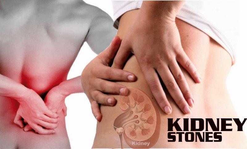 kidney-stones