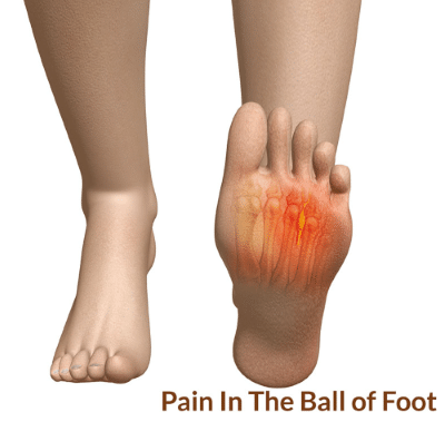 pain-in-the-ball-of-the-foot