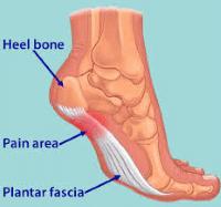 plantar-fasciitis-pain